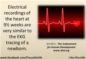 Electrical recordings of the heart at 9 and a half weeks are very similar to the EKG tracing of a newborn